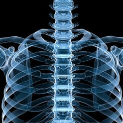 Clearwater Back and Neck Job Injury Attorney